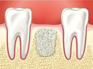Необходимо ли наращивание костной ткани при имплантации (3)