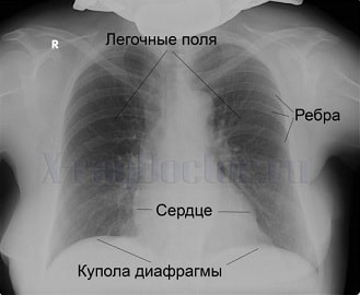 Бронхоэктатическая болезнь (1)