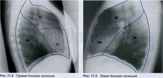 Бронхоэктатическая болезнь (2)
